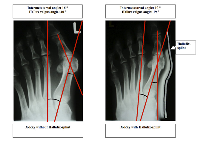 Bunion Treatment Splint XRay