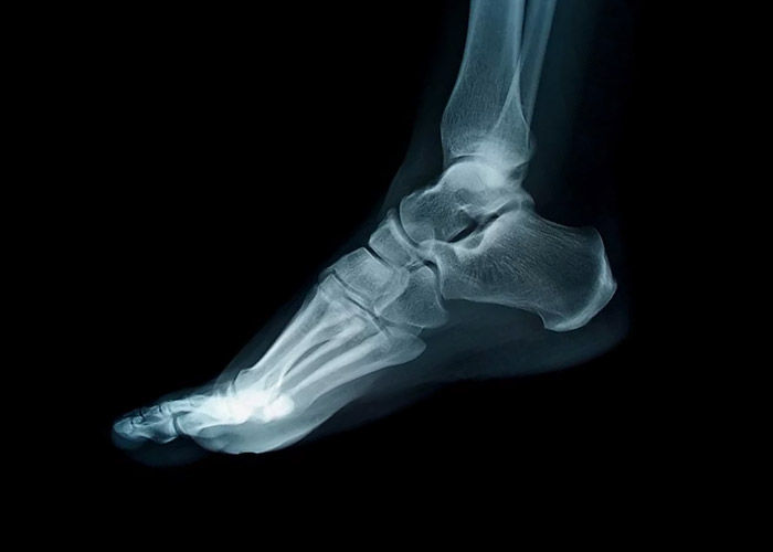 Bunion Aid Splint for Post Bunion Surgery