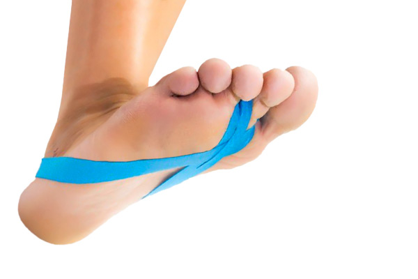 Hallufix® Taping Loops for Bunions